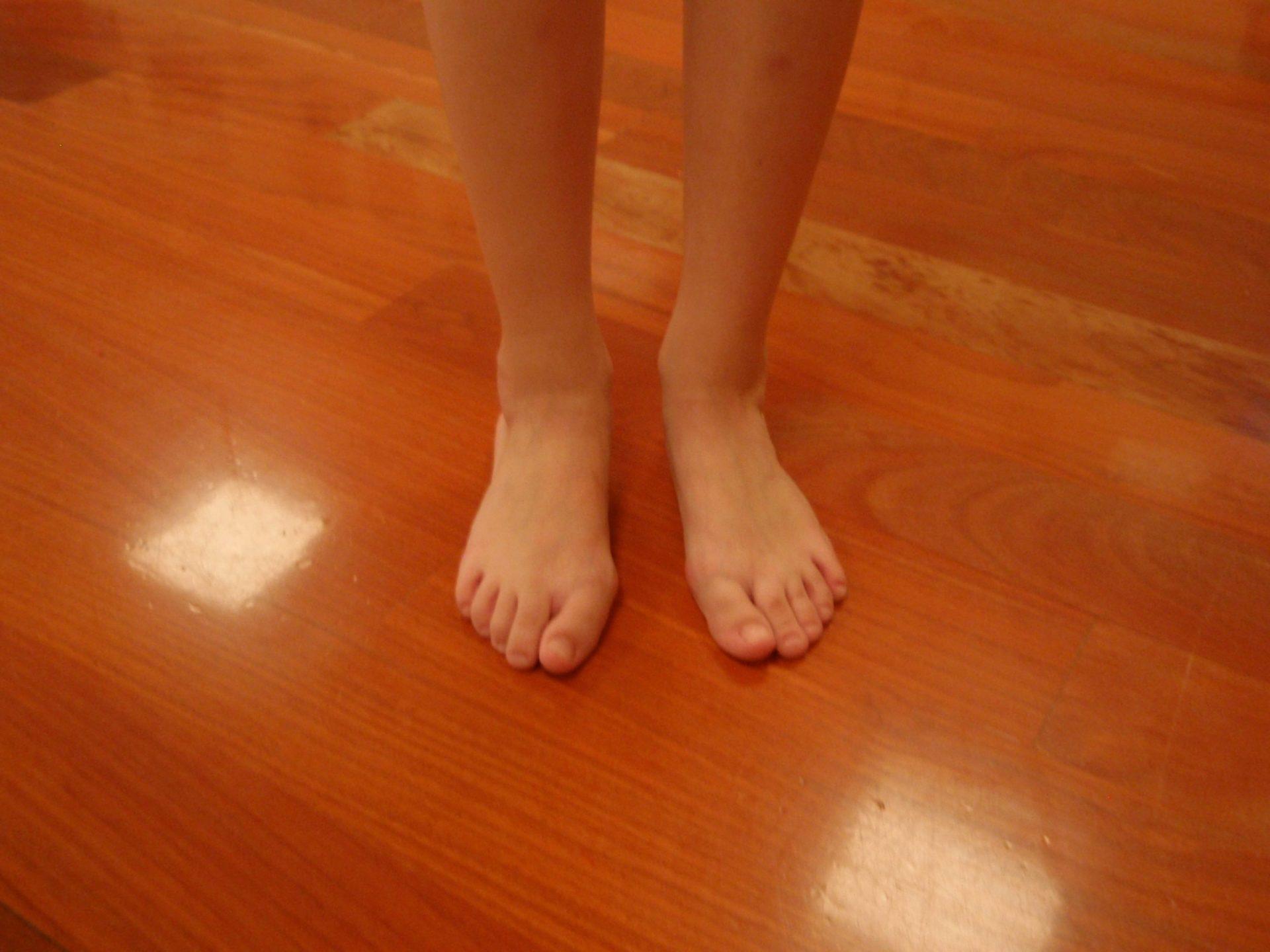Alumna con pies valgos y con hallux valgus o juanetes.