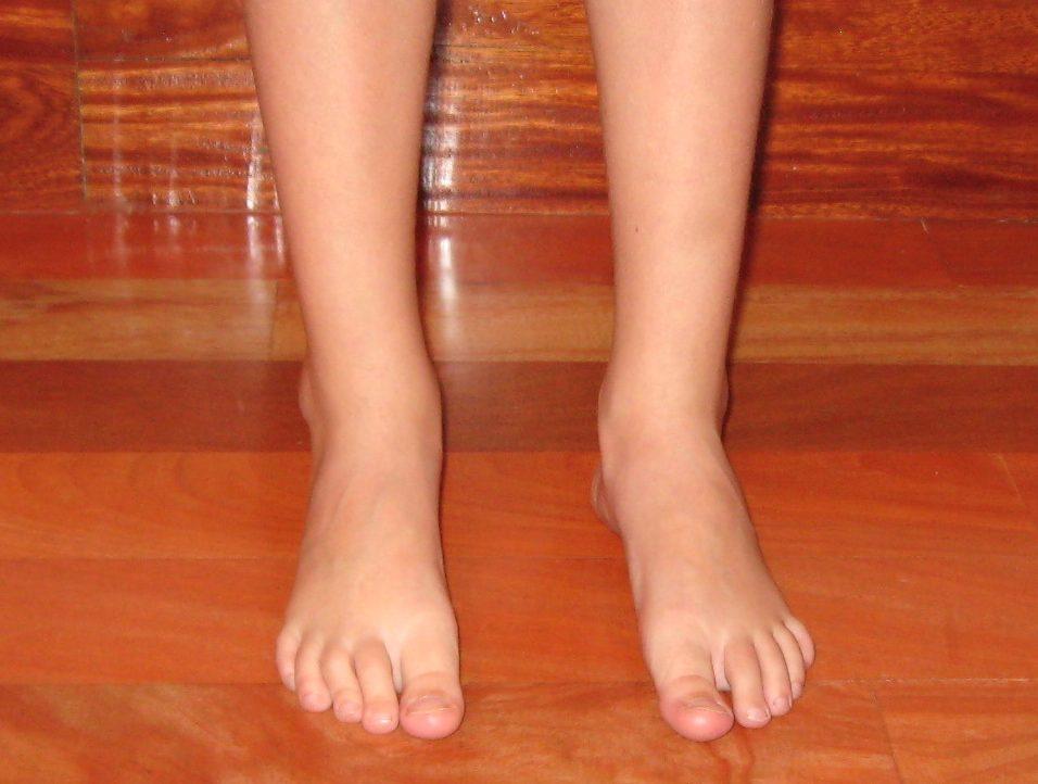 Foto de la vista anterior tras el alta médica, de unos pies plano-valgo tras varios años de trabajo correctivo que realiza el Centro de Danza Santa Cruz.