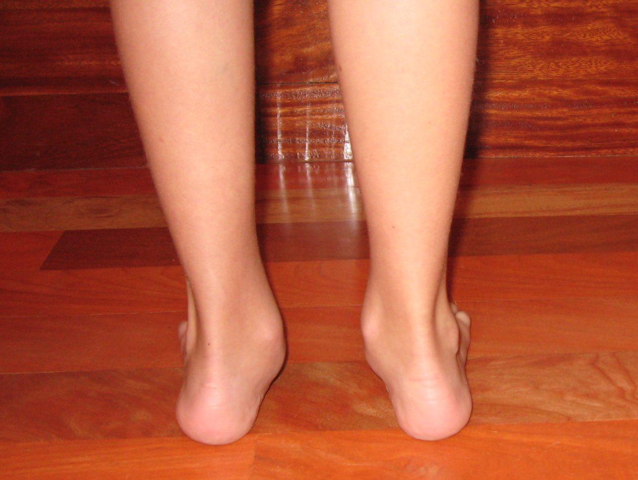 Foto de la vista posterior de unos pies plano-valgo antes del trabajo correctivo que realiza el Centro de Danza Santa Cruz.
